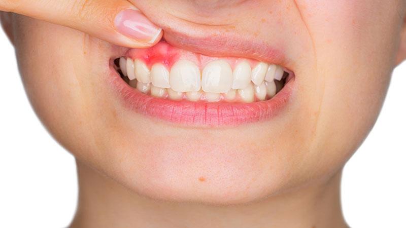 Viêm nướu cũng dẫn đến đau răng