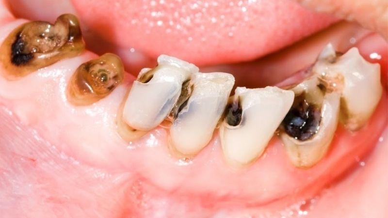 Những tổn thương trên răng gây viêm tủy