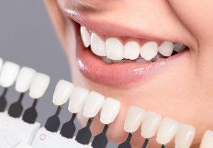 Bọc răng sứ nano shining 5s và tất cả những điều cần biết